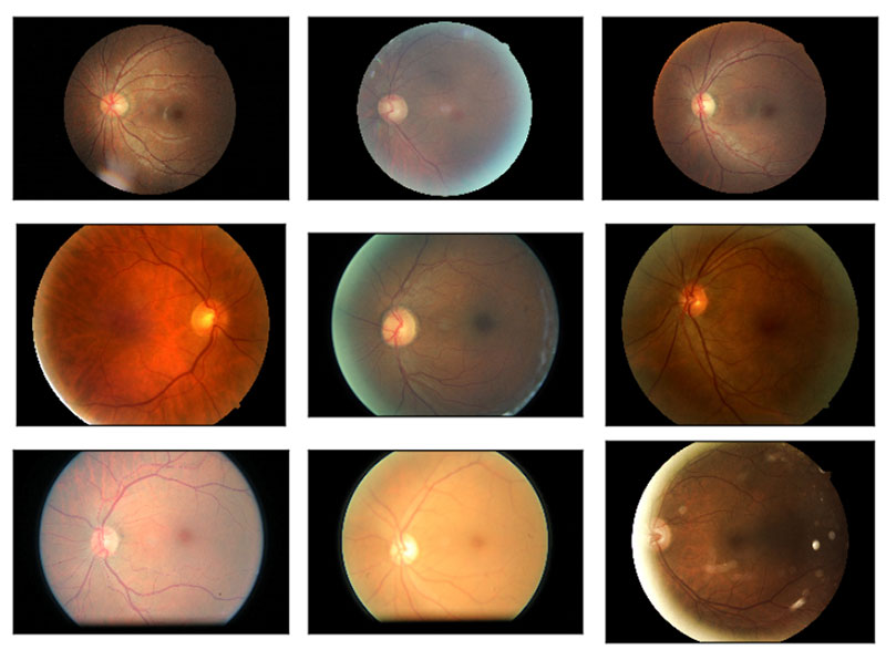 Diabetic retinopathy is exceedingly time consuming to diagnose, which is why more efficient and automated methods are needed. (Image Source: Kaggle)