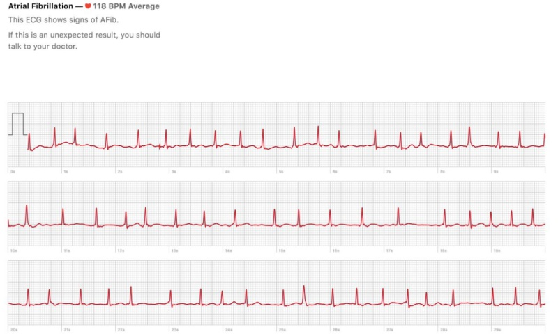 An export of the ECG results from the Apple Health app. <br>Image source: edentel