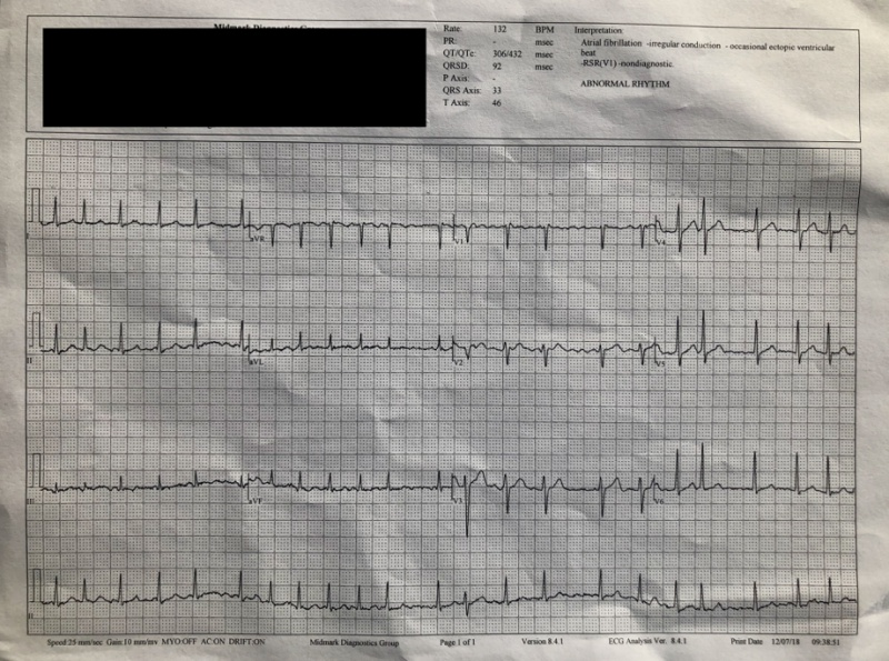 A section of the ECG that was run by the doctor at the clinic. <br>Image source: edentel