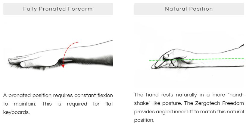 Your wrist and forearm prefer to sit at an angle instead of completely flat. (Image Source: Zergotech)